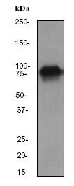 Western blot - Cortactin antibody [EP1922Y] (ab81208)
