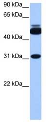 Western blot - Anti-CYLC2 antibody (ab81228)