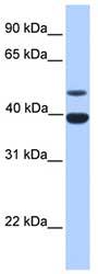 Western blot - Anti-Inhibin alpha antibody (ab81234)