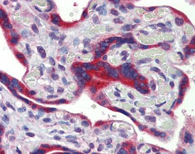 Immunohistochemistry (Formalin/PFA-fixed paraffin-embedded sections) - Anti-ZNF312B antibody (ab81251)