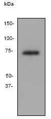Western blot - Anti-MMP8 antibody [EP1252Y] (ab81286)
