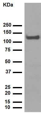 Western blot - Anti-CD34 antibody [EP373Y] (ab81289)