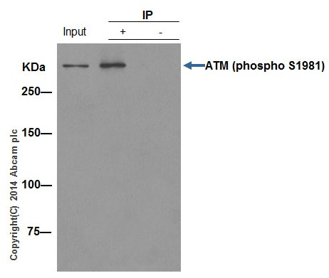 Immunoprecipitation - Anti-ATM (phospho S1981) antibody [EP1890Y] (ab81292)