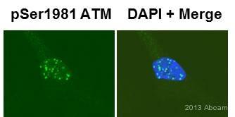 Immunocytochemistry - Anti-ATM (phospho S1981) antibody [EP1890Y] (ab81292)