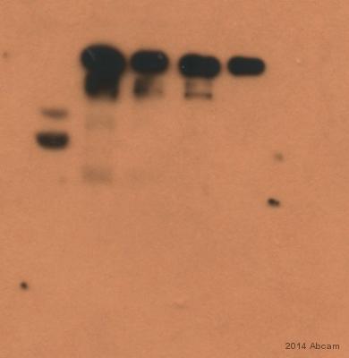 Western blot - Anti-ATM (phospho S1981) antibody [EP1890Y] (ab81292)