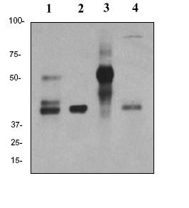 Western blot - Anti-Inhibin alpha antibody [EPY2782] (ab81322)
