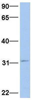 Western blot - Anti-SRPR beta antibody (ab81324)