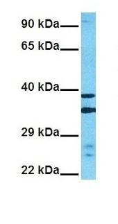 Western blot - Anti-tenomodulin antibody (ab81328)