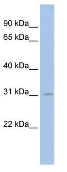 Western blot - Anti-GCLM antibody (ab81445)