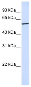Western blot - Anti-KPNA4 antibody (ab81451)