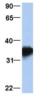 Western blot - Anti-Lactate Dehydrogenase isozyme H4 antibody (ab81485)