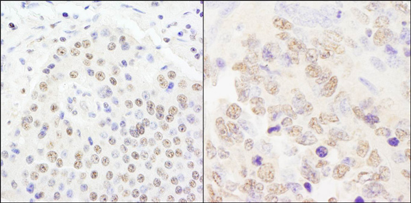 Immunohistochemistry (Formalin/PFA-fixed paraffin-embedded sections) - Anti-CPSF2 antibody (ab81553)