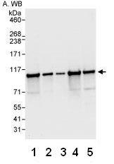 Western blot - Anti-CPSF2 antibody (ab81554)