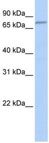 Western blot - Anti-FBXO42 antibody (ab81638)