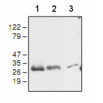 Western blot - Anti-UQCRFS1 antibody (ab81810)