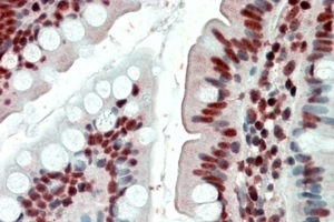 Immunohistochemistry (Formalin/PFA-fixed paraffin-embedded sections) - Anti-EWSR1 antibody (ab81971)