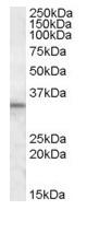 Western blot - Anti-HAX1 antibody (ab81973)