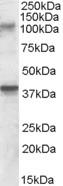 Western blot - Anti-GRIK3 antibody (ab82148)