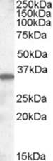 Western blot - Anti-SLC10A2 antibody (ab82170)