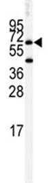 Western blot - Anti-Butyrylcholinesterase antibody (ab82307)
