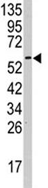 Western blot - Anti-KPNA2 antibody - N-terminal (ab82313)
