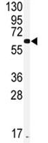 Western blot - Anti-Cytochrome p450 2J2 antibody (ab82361)