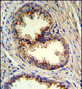 Immunohistochemistry (Formalin/PFA-fixed paraffin-embedded sections) - Anti-GOLPH3 antibody (ab82377)
