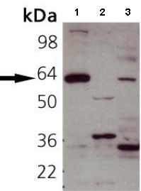 Western blot - Anti-Synaptotagmin 1 antibody (ab82414)