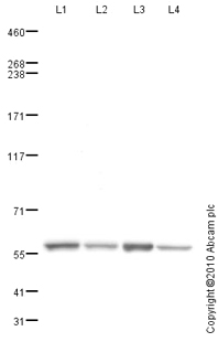 Western blot - Anti-TRAP220/MED1 antibody (ab82461)