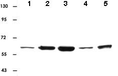Western blot - Anti-AKT1/2/3 antibody (ab82538)