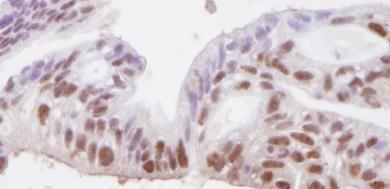 Immunohistochemistry (Formalin/PFA-fixed paraffin-embedded sections) - Anti-SMC3 antibody (ab82551)