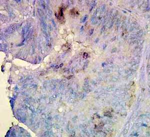 Immunohistochemistry (Formalin/PFA-fixed paraffin-embedded sections) - Anti-Hsp90 beta antibody [K3701] (ab82584)