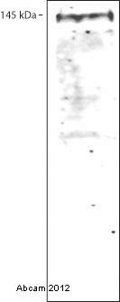 Western blot - Anti-CD42b antibody [MM2/174] (FITC) (ab82594)