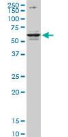 Western blot - Anti-CSAD antibody (ab82613)