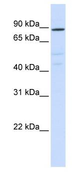 Western blot - Anti-ATP6V0A2 antibody (ab82638)