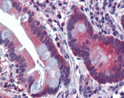 Immunohistochemistry (Formalin/PFA-fixed paraffin-embedded sections) - Anti-ATP6V0A2 antibody (ab82638)