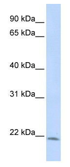 Western blot - Anti-LIN7C antibody (ab82646)