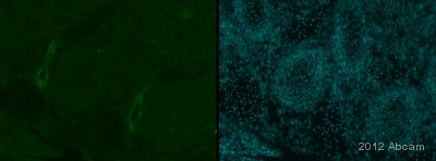 Immunohistochemistry (Frozen sections) - Anti-LRRN3 antibody (ab82657)
