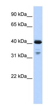 Western blot - Anti-OAS1 antibody (ab82666)