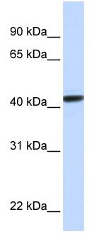 Western blot - Anti-CLN8 antibody (ab82759)