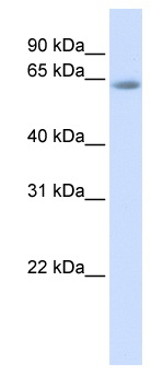 Western blot - Anti-TCF7L2 antibody (ab82768)
