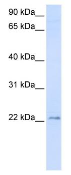 Western blot - Anti-TMEM9 antibody (ab82770)