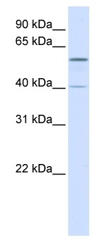 Western blot - Anti-TRIM49 antibody (ab82779)