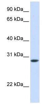 Western blot - Anti-TNNT3 antibody (ab82784)