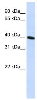 Western blot - Anti-CARKD antibody (ab82820)