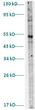 Western blot - Anti-TUBGCP2 antibody (ab82824)