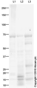 Western blot - Anti-Leukotriene B4 Receptor antibody (ab82851)