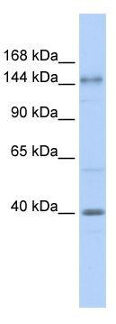 Western blot - Anti-ADCY10 antibody (ab82854)