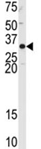 Western blot - Anti-APE1 antibody - N-terminal (ab82859)