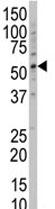 Western blot - Anti-POLG2 antibody (ab82860)